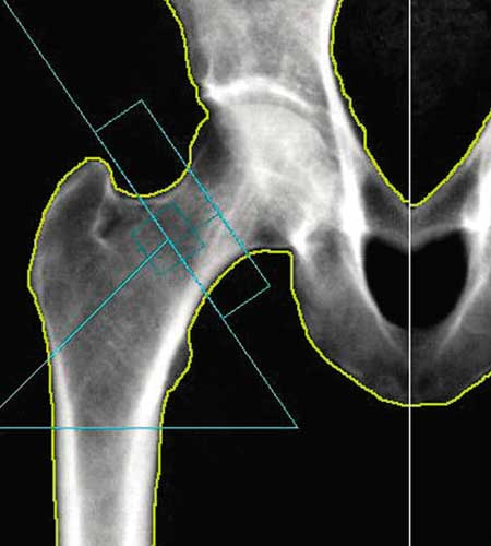 Image from a DEXA bone density scan of a patient's hip, similar to the scans provided by Dr. Reuben Elovitz and the team at Private Health Dallas as part of the concierge care and annual physical exam.
