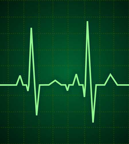 Readout from an ECG (electrocardiogram) monitoring a patient's heart, part of the services provided by Dr. Reuben Elovitz and the team at Private Health Dallas as part of their concierge care and annual physical exam.