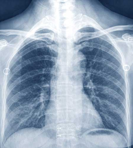 Xray image of a person, similar to the imaging provided by Southwest Diagnostic and Imaging for Dr. Reuben Elovitz and Private Health Dallas.
