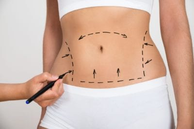 Liposuction Skintastic