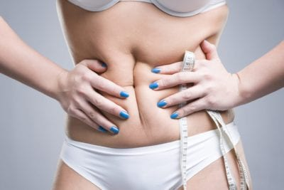 laser liposuction, liposuction