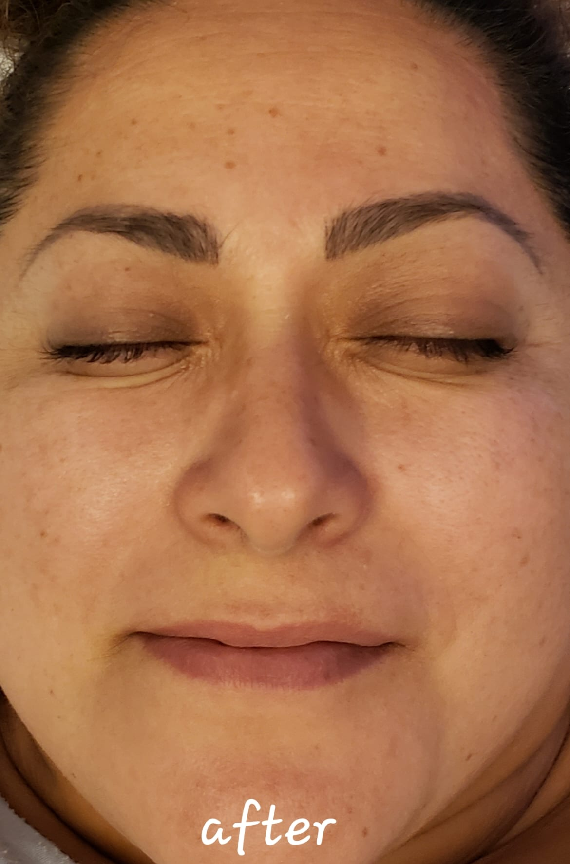 Hydrafacial at Joules Medical Aesthetics: See the amazing difference that can be made with a custom treatment plan from Joules Medical Aesthetics in Plano and Southlake