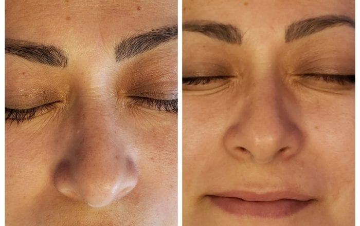 Hydrafacial at Skintastic: See the amazing difference that can be made with a custom treatment plan from SKINTASTIC in Plano and Southlake