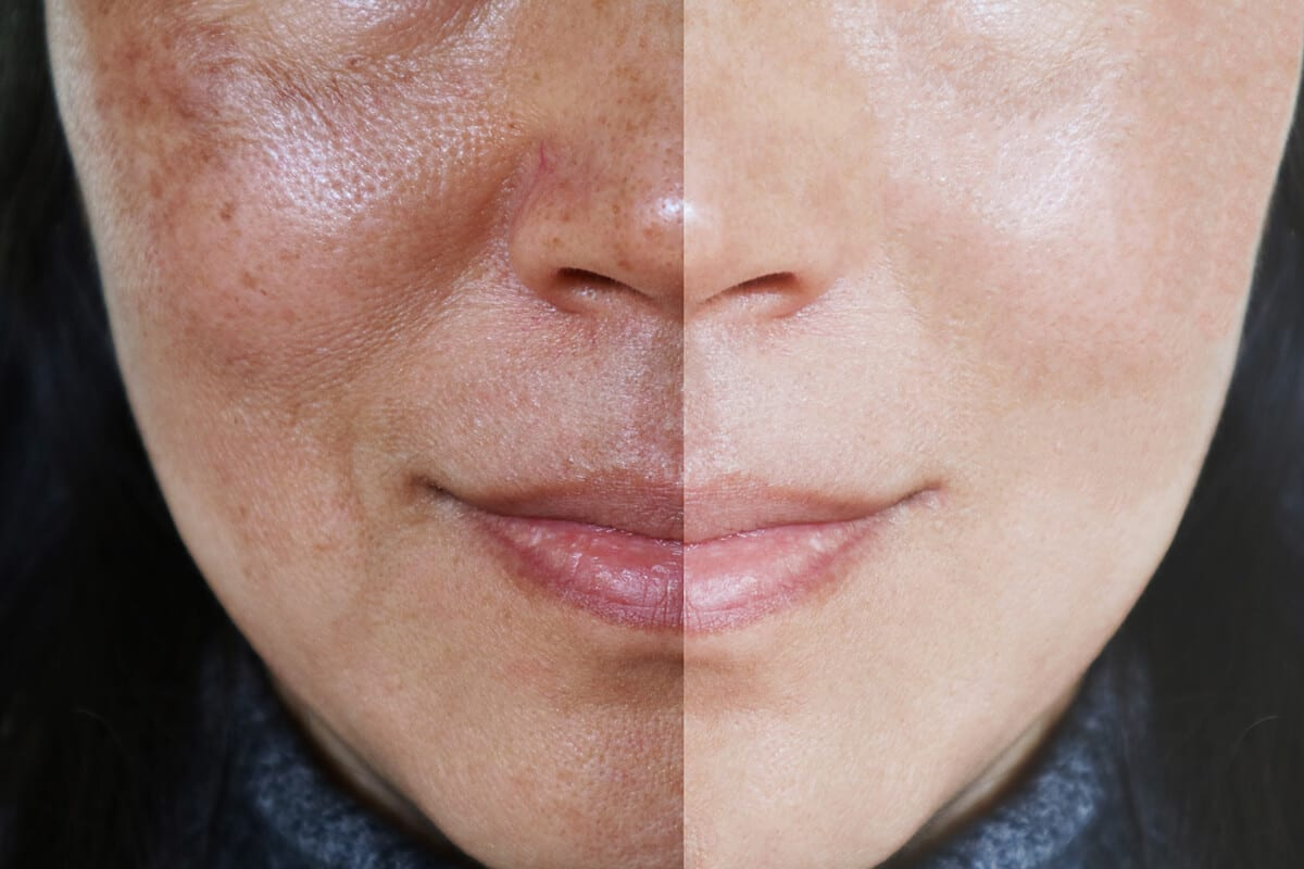 IPL Photofacial: Intense Pulsed Light treatments performed with Sciton BBL Laser for repairing sun damage, freckles, irregular pigmentation and light brown spots on face, neck, and chest at Joules Medical Aesthetics Plano and Southlake