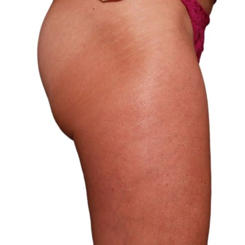 Venus Legacy at Skintastic Plano and Southlake: Get the body you've always wanted with skin tightening and cellulite reduction.