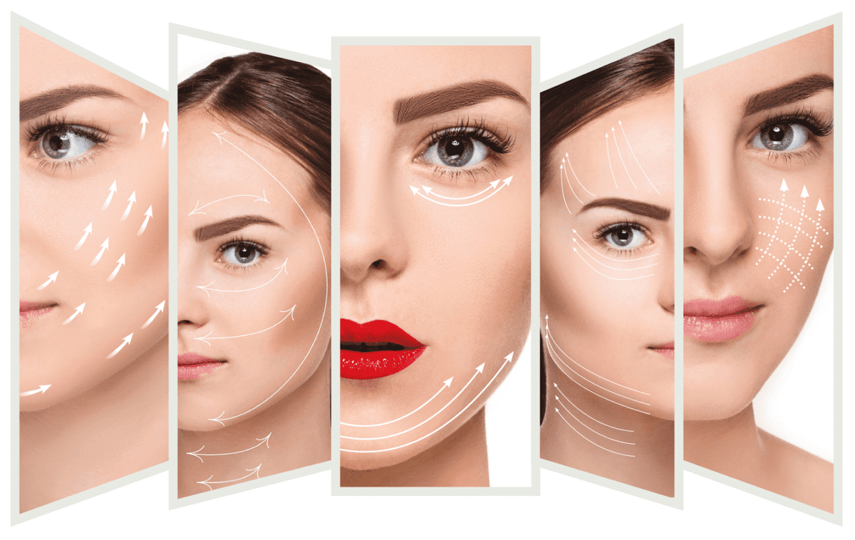 PDO Threads: lift and tighten with no surgery! Schedule your consultation with the expets at SKINTASTIC, in Plano and Southlake.