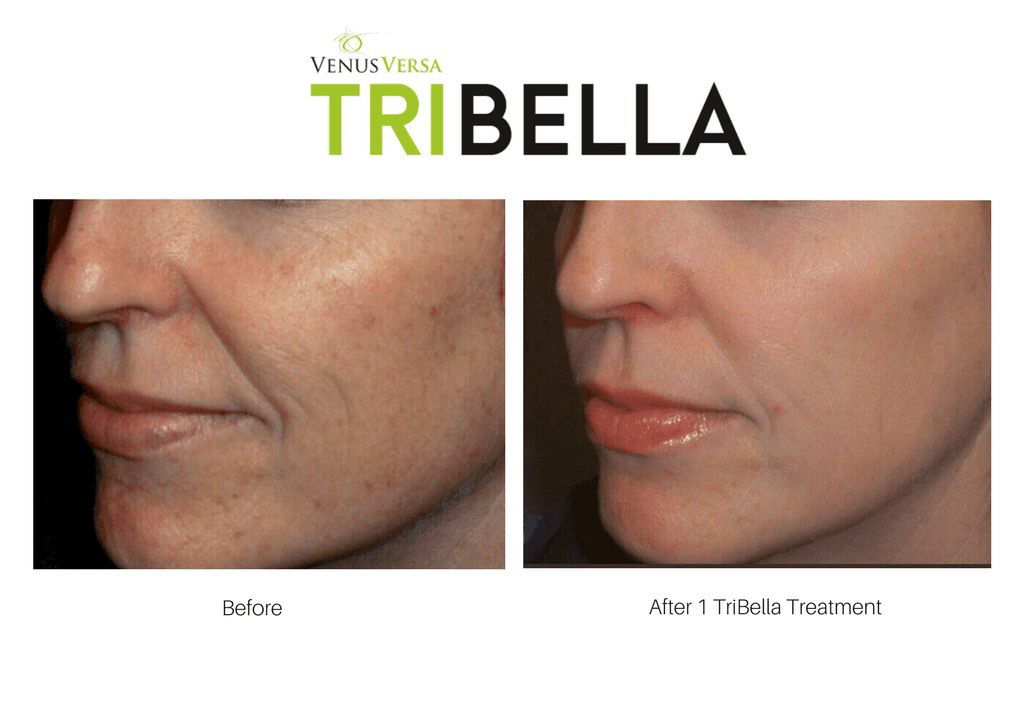 Venus Versa Tribella: The 3-in-1 state of the art laser treatment, available at Joules Medical Aesthetics in Plano and Southlake. Tribella is the treatment for TOTAL facial rejuvenation!