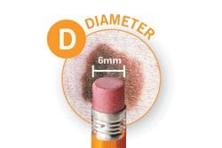 ABCDE of Melanoma Detection - Diameter