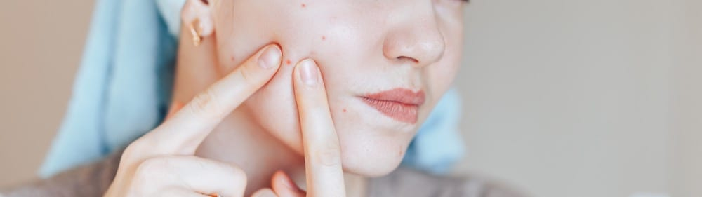Acne of all kinds is a common condition treated successfully by Dr. Max Adler at Max Adler Dermatology in Plano TX.