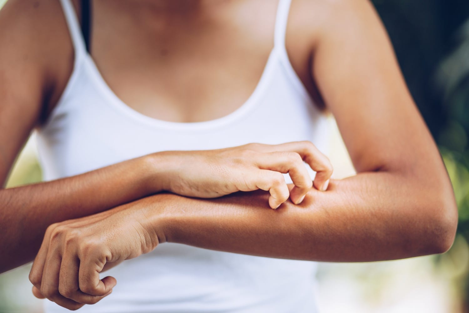 Eczema, or or inflammation of the skin with symptoms of itchy, dry, and red skin,, is a common condition treated successfully by Dr. Max Adler at Max Adler Dermatology in Plano TX.