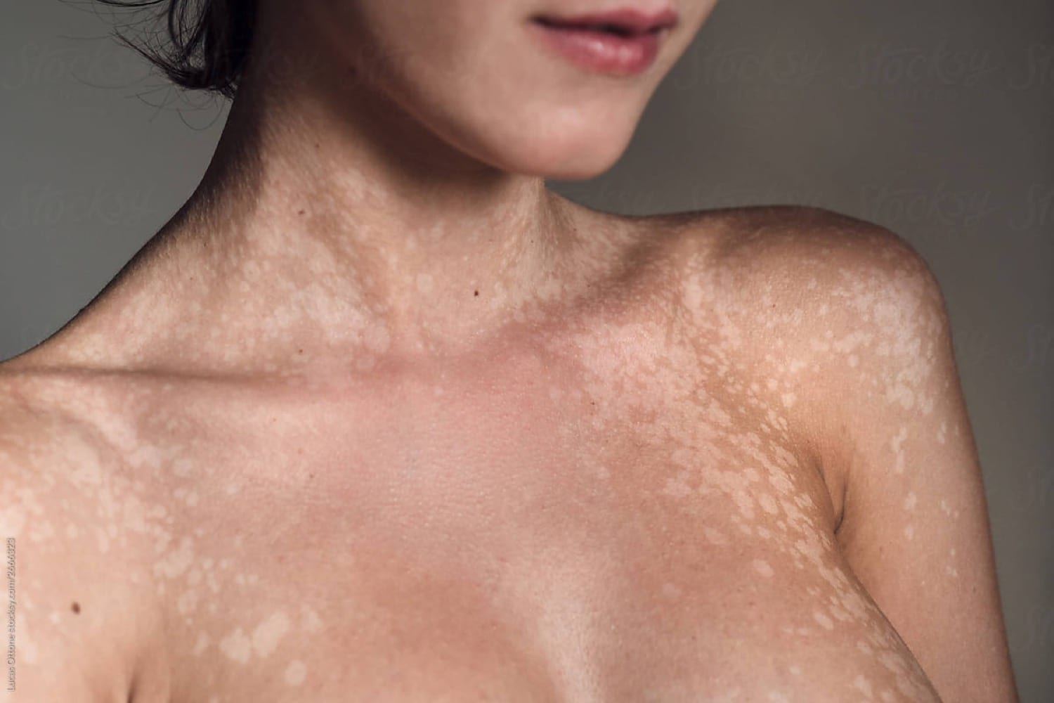Tinea Versicolor is another skin condition that is successfully treated by Dr. Max Adler at Max Adler Dermatology in Plano TX