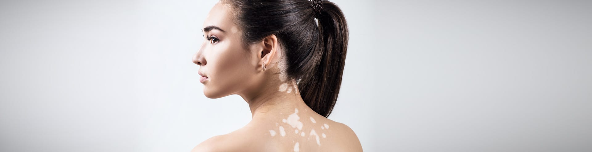 Vitiligo (or patches of white skin) is a common condition treated successfully by Dr. Max Adler at Max Adler Dermatology in Plano and Dallas TX.