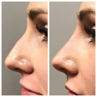 Liquid Rhinoplasty, the nonsurgical nose shaping procedure available at Joules Medical Aesthetics in Plano and Dallas, TX