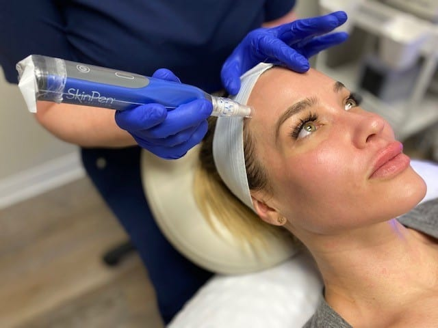 Microneedling: Reverse years of skin damage with a simple and effective treatment at Joules Medical Aesthetics Plano
