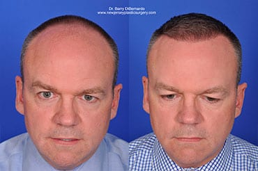 SmartGraft - the latest technology breakthrough for hair loss and replacement, available at Max Adler Dermatology and Joules Aesthetics in Plano and Dallas TX.