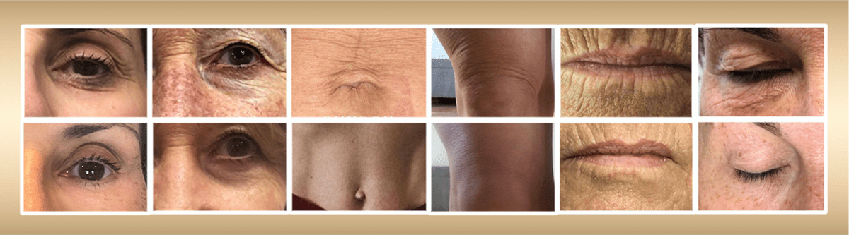 Venus viva Skin Resurfacing Treatment - available at Joules Medical Aesthetics in Plano and Southlake