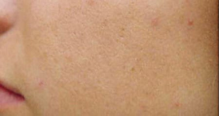 Tattoo Removal at Joules Medical Aesthetics Plano and Southlake - for when you are rethinking the ink.